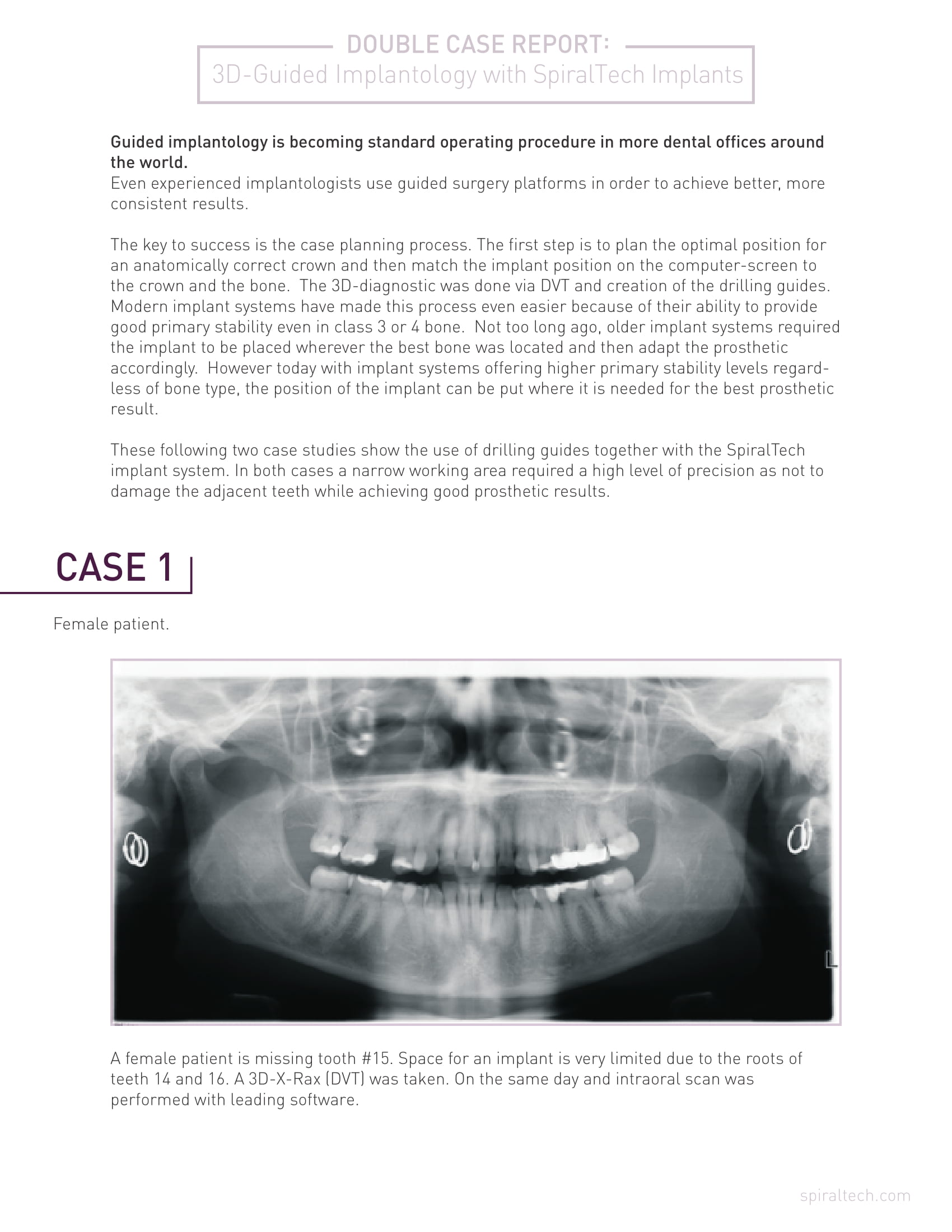 Components Of A Dental Implant Manual Guide